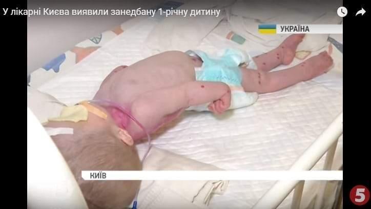 В одной из больниц Киева медики искалечили ребенка