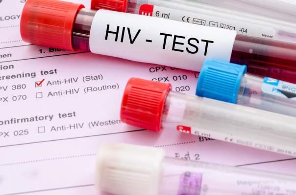 Украина и Россия среди лидеров Европы по уровню заражения ВИЧ