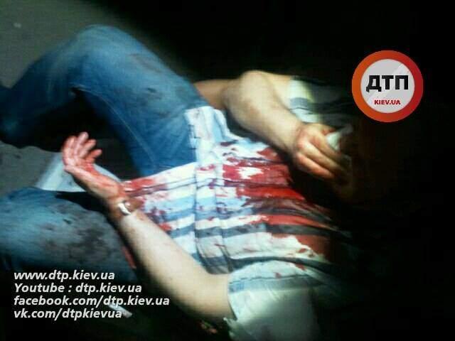 В Киеве в одном из ночных клубов зверски избили посетителя