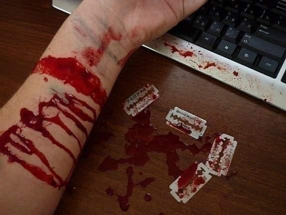 Работа до последней капли крови. В Днепре мужчина в рабочий день пытался покончить с собой