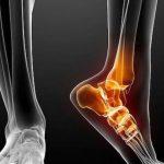 В России разработали имплантат кости, заселенный клетками пациента