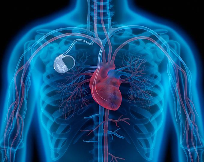 Как работает медицинский дефибриллятор?